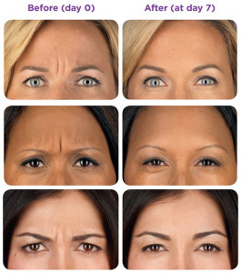 Botox-frons